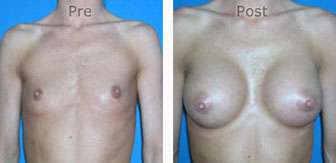 Breast-Augmentation_0030