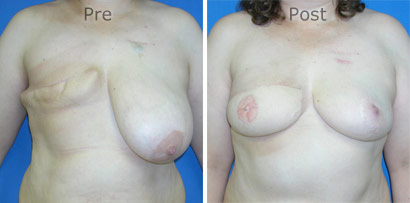 Breast-Reconstruction_0070
