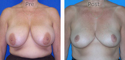 Breast-Reduction_0082