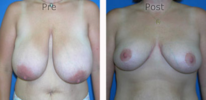 Breast-Reduction_0083