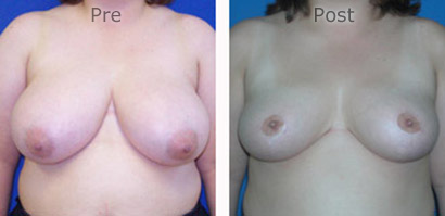 Breast-Reduction_0086