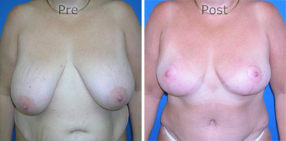 Breast-Reduction_0087