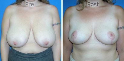 Breast-Reduction_0088