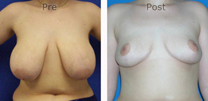 Breast-Reduction_0090