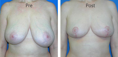 Breast-Reduction_0091