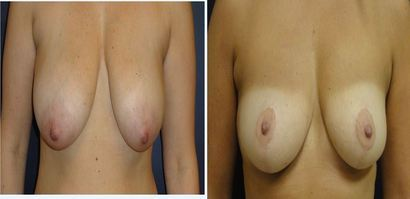 Breast-Reduction_0094