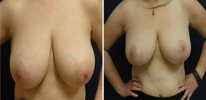 Breast-Reduction_0095