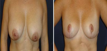Breast-Reduction_0096