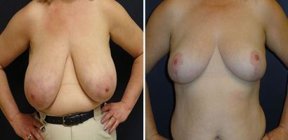 Breast_Reduction_0092