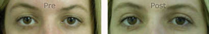 Eyes-Blepharoplasty_0156