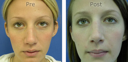 Nose-Rhinoplasty_0166