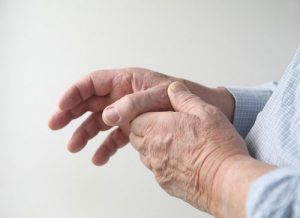 Arthritis of The Thumb