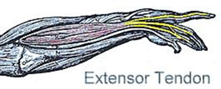 extensor tendon injury
