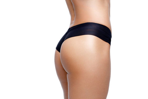 Outer Thigh and Buttock Lift